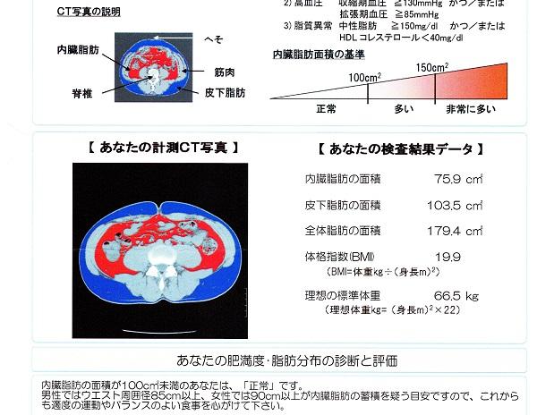 CTスキャンによる内臓脂肪検査結果
